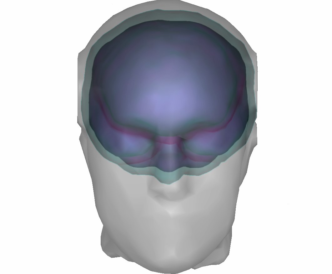 Example with three surfaces: outer scalp (gray),